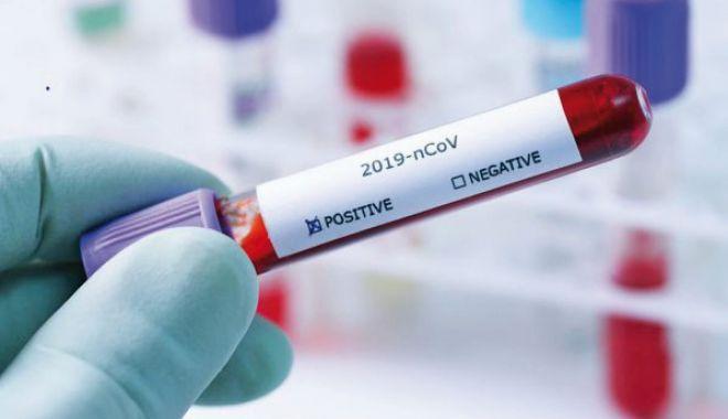 Câte persoane au fost infectate cu coronavirus la Constanța de la începutul pandemiei - 12pozatestcovidjos-1615918584.jpg