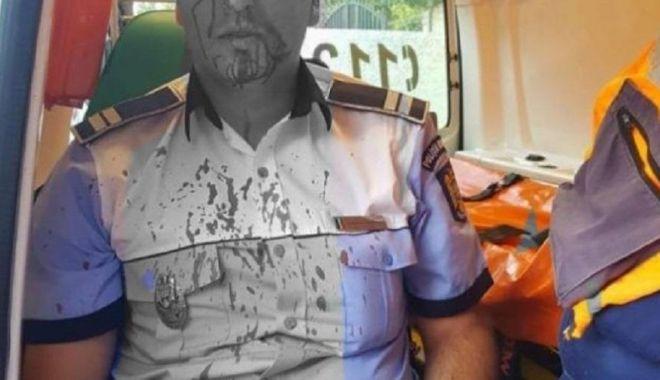 Un polițist a fost lovit în cap în timp ce încerca să imobilizeze un bărbat agresiv - agresiune-1594550875.jpg