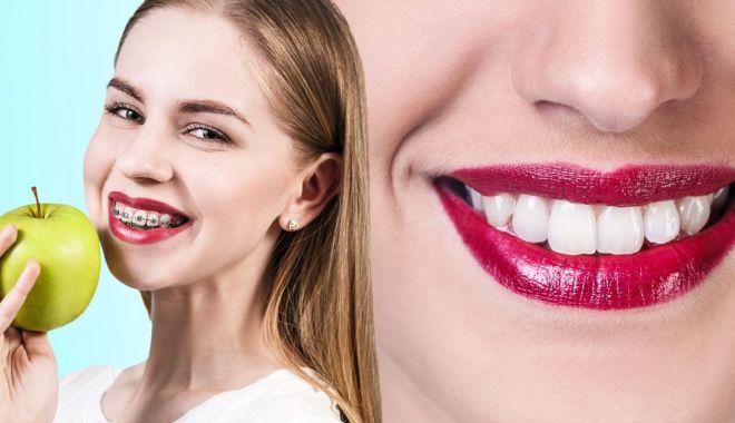 Foto: Stomatologie de vacanță. Purtarea aparatului dentar impune reguli stricte
