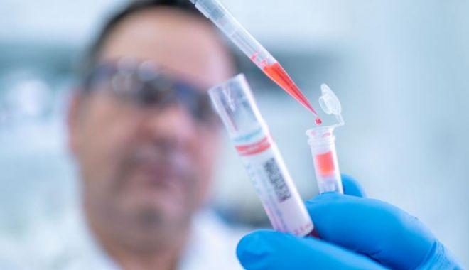 Foto: Creșterea cazurilor de coronavirus este, de fapt, o scădere. De ce a raportat România ieri mulți bolnavi de COVID-19