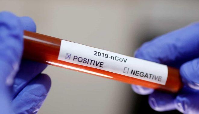 Foto: Angajată a ministerului Sănătății, infectată cu coronavirus. 12 persoane au fost izolate la domiciliu