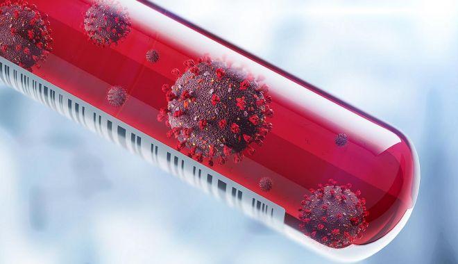 Încă 11 persoane infectate cu noul coronavirus au murit, numărul celor decedați ajungând la 619 - coronavirustestphotodenisismagil-1587916715.jpg