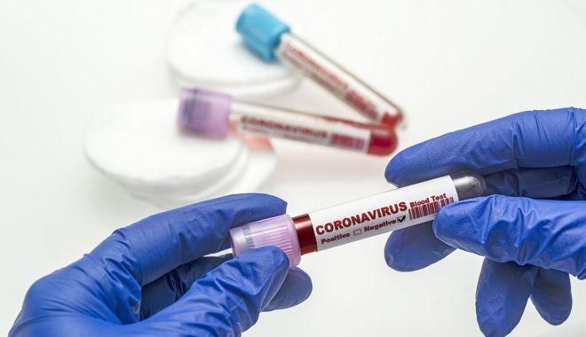 Coronavirus la Constanța. Au fost confirmate 23.917 de persoane au fost confirmate cu COVID - covid3-1608321941.jpg