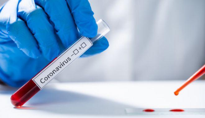 Foto: Coronavirus la Constanța. 1.082 de persoane au fost confirmate cu COVID-19 până la ora actuală