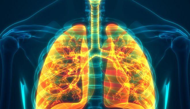 Studiu: Pacienții vindecați de Covid-19 rămân cu leziuni pulmonare după externare - plamani-1599463763.jpg