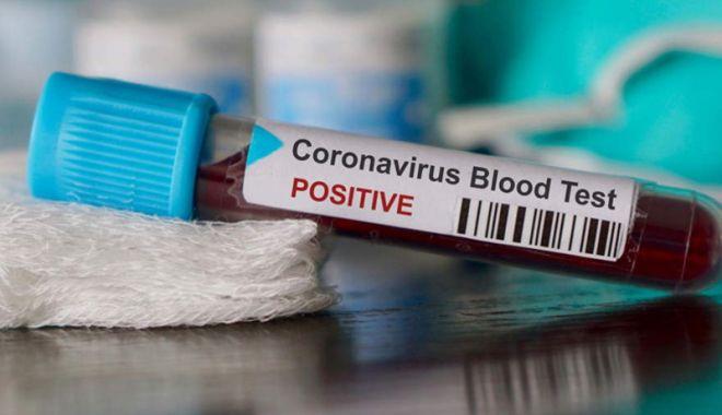Coronavirus România: 187 de cazuri noi de coronavirus în ultimele 24 de ore - test-1591437966.jpg