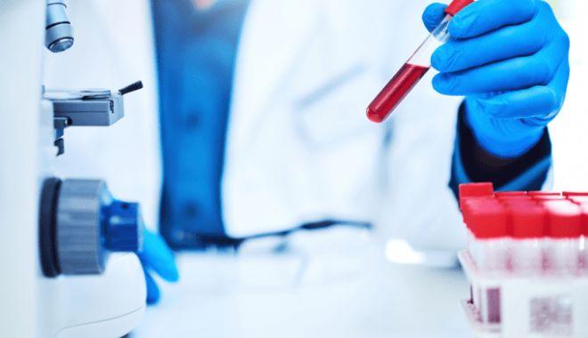 57 de români din Berlin, confirmați ca infectați cu noul coronavirus. Unul este în stare critică - test-1592548251.jpg