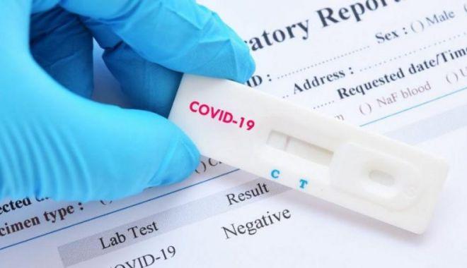 Foto: Studiu: Asimptomaticii au aceeași cantitate de coronavirus ca pacienții simptomatici