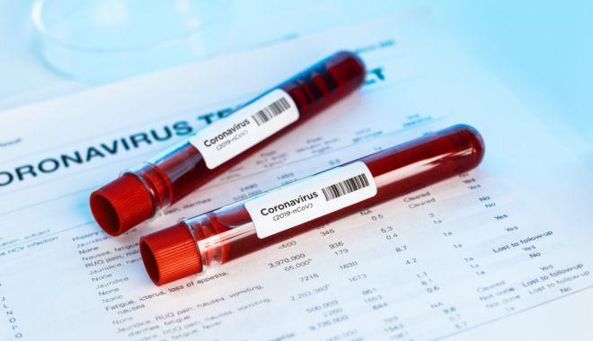 Număr record de infecţii cu SARS-CoV-2 de la începutul pandemiei în Israel - test-1610445952.jpg