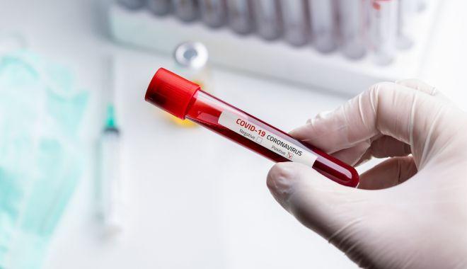 Foto: COVID-19. 1.087 de cazuri noi, din doar 11.846 de teste. 25 de noi infectați, la Constanța