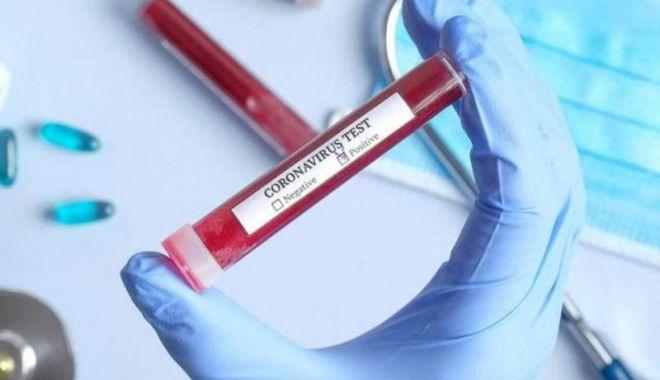 Foto: Studiu: Imunitatea la COVID-19 scade rapid la persoanele cu simptome ușoare